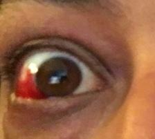 effetti di un barotrauma oculare