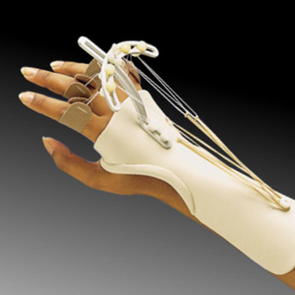 Tutore dinamico per la lesione del nervo radiale della mano