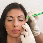 preparazione all'intervento di oftalmoplastica