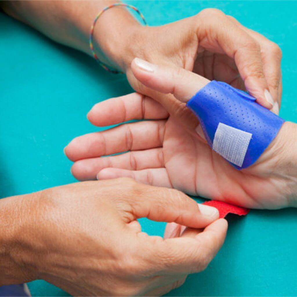 Tutore dinamico per lesione del nervo mediano della mano